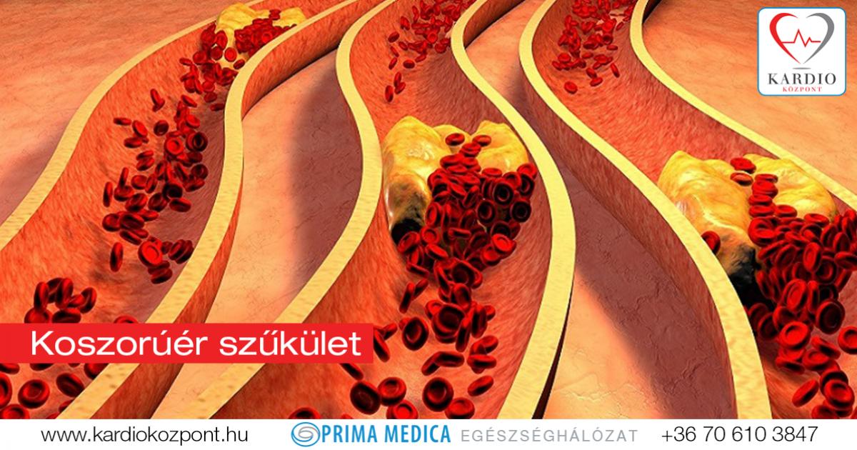 koszorúér-magas vérnyomás magas vérnyomás 3 fokú gyógyszerek kezelése
