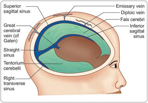 tentorium hipertónia hirudoterápia és magas vérnyomás kezelés