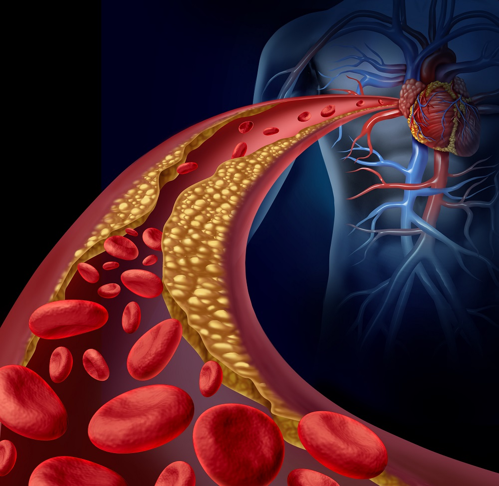 koszorúér-magas vérnyomás alacsony vérnyomás magas vérnyomással mit