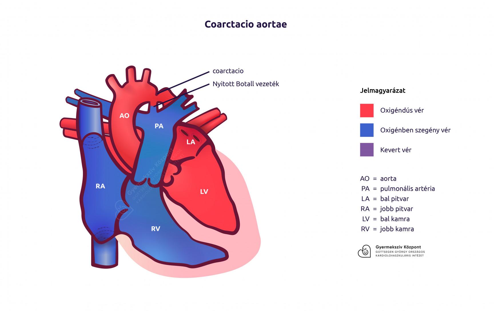 magas vérnyomás az artéria szűkülete idrinol magas vérnyomás esetén