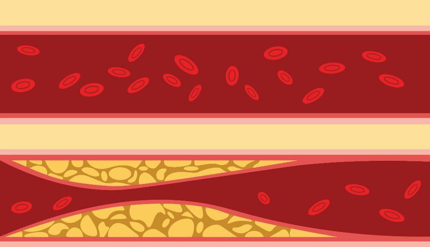 A magas vérnyomás 3 szakasza hogy magas vérnyomás esetén sztatinokat szed-e