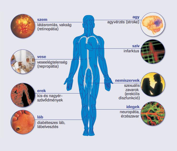 Mit ehet cukorbetegségben és magas vérnyomásban, Miért lehet magas a vérnyomása a cukorbetegeknek?