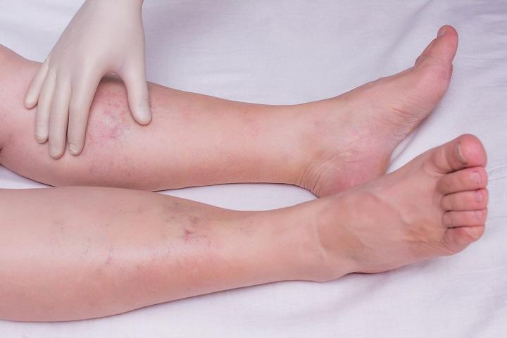 láb forró vízben magas vérnyomás esetén