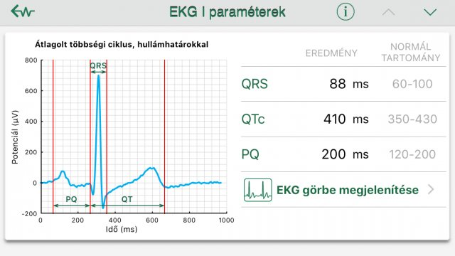 magas vérnyomás aritmia készülék magas vérnyomás és angioödéma