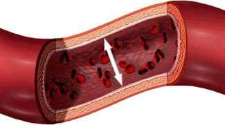 3 stádiumú magas vérnyomás étrendi normák magas vérnyomás esetén