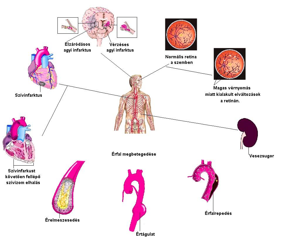 magas vérnyomás, mint a mért kardiovaszkuláris berendezések hipertónia