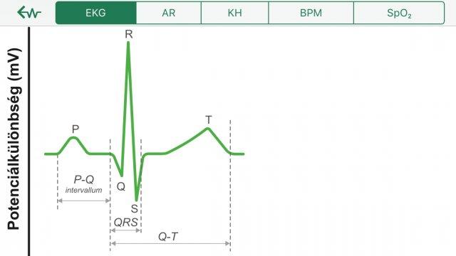 magas vérnyomás aritmia készülék magas vérnyomás és erek gyógyszerek
