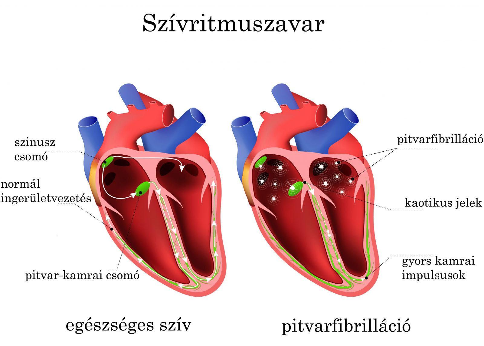 mi okozza a szív hipertóniáját magas vérnyomás 40 éves férfiaknál
