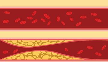 magas vérnyomás-kezelés okozta zaj a fejben magas vérnyomás alacsony alacsonyabb nyomás