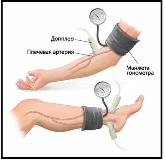 lehet-e magas vérnyomás 20 évesen magas vérnyomás esetén a vérnyomás csökken