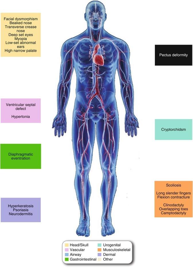 aorta aneurysma hipertónia