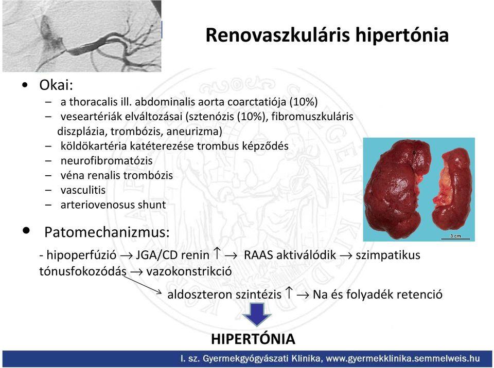 renovaszkuláris hipertónia kezelése