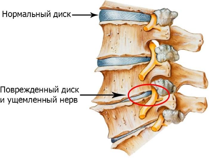 a nyaki gerinc osteochondrosis és a magas vérnyomás
