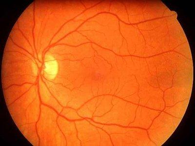 hogyan lehet megelőzni a magas vérnyomású stroke-ot