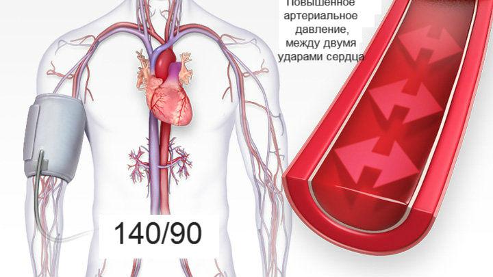 alsó és felső nyomás magas vérnyomásban