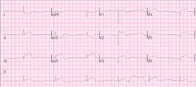 Mi a bradycardia, a tachycardia, a hypotonia, a magas vérnyomás és annak okai