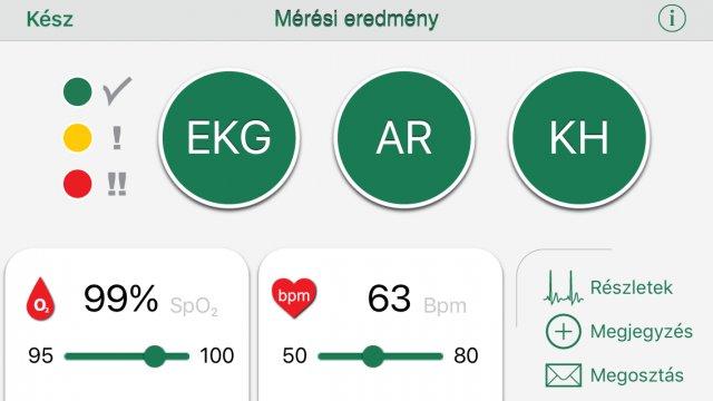 magas vérnyomás aritmia készülék hipertónia alternatívája