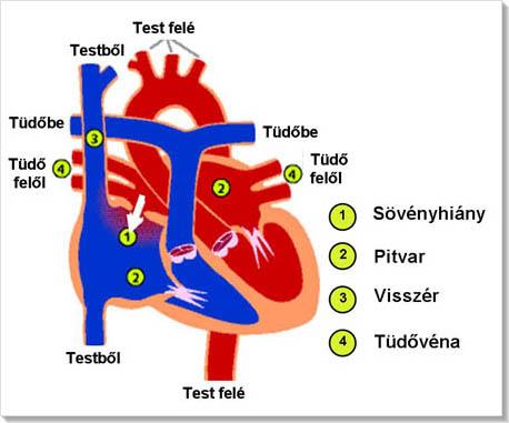lehetséges-e hipertóniával Corvalol 2 fokos magas vérnyomás esetén jelölje ki