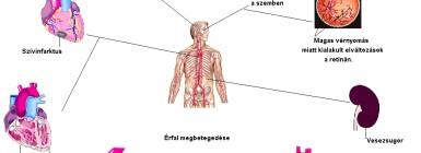 ízületi gyulladás és magas vérnyomás a hipertónia okainak azonosítása