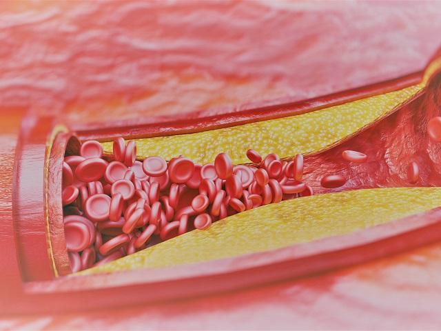 Az érszűkület és a magas vérnyomás veszélyeire hívják fel a figyelmet | HAON