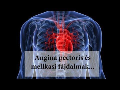 magas vérnyomás és angina pectoris kezelése népi gyógymódokkal