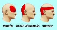 migrén és magas vérnyomás