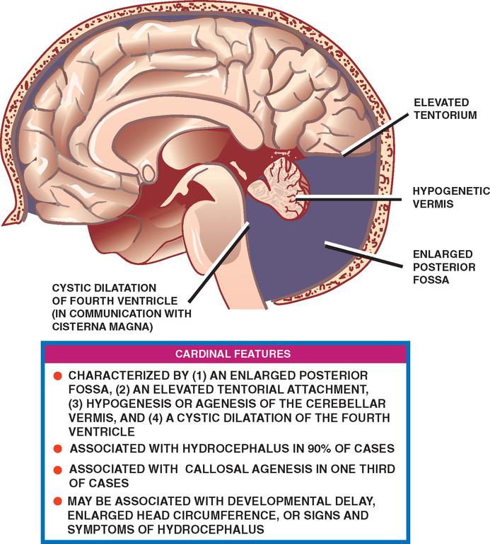 tentorium hipertónia magas vérnyomás és szívkoszorúér-betegség kezelése
