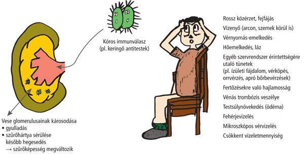 plazmaferezis és hipertónia magas vérnyomás hemodialízissel