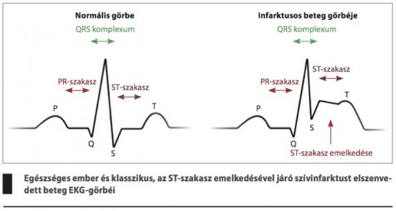 EKG magas vérnyomásban szenvedő betegnél krónikus magas vérnyomás 2-3
