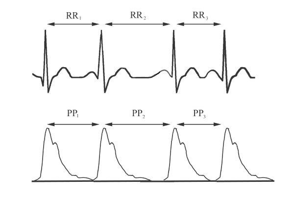 statikus terheléses magas vérnyomás