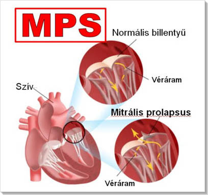 magas vérnyomás és prolapsus