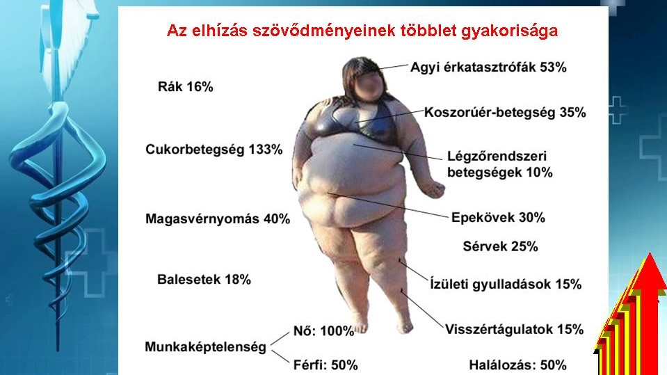 hipertónia túlsúlyos