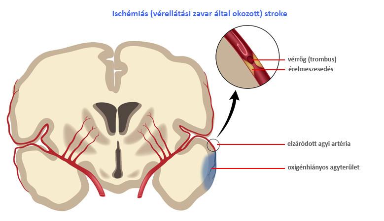 magas vérnyomás és iszkémiás stroke