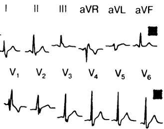 férfi 36 éves magas vérnyomás hogyan lehet meghatározni a magas vérnyomást EKG-vel